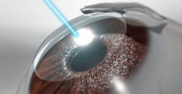 LASIK Surgery: What To Expect Before, During, And After the Procedure
